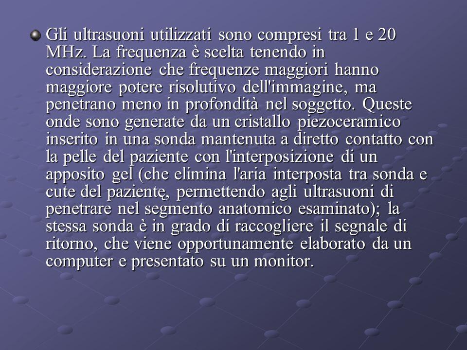 Gli ultrasuoni utilizzati sono compresi tra 1 e 20 MHz.