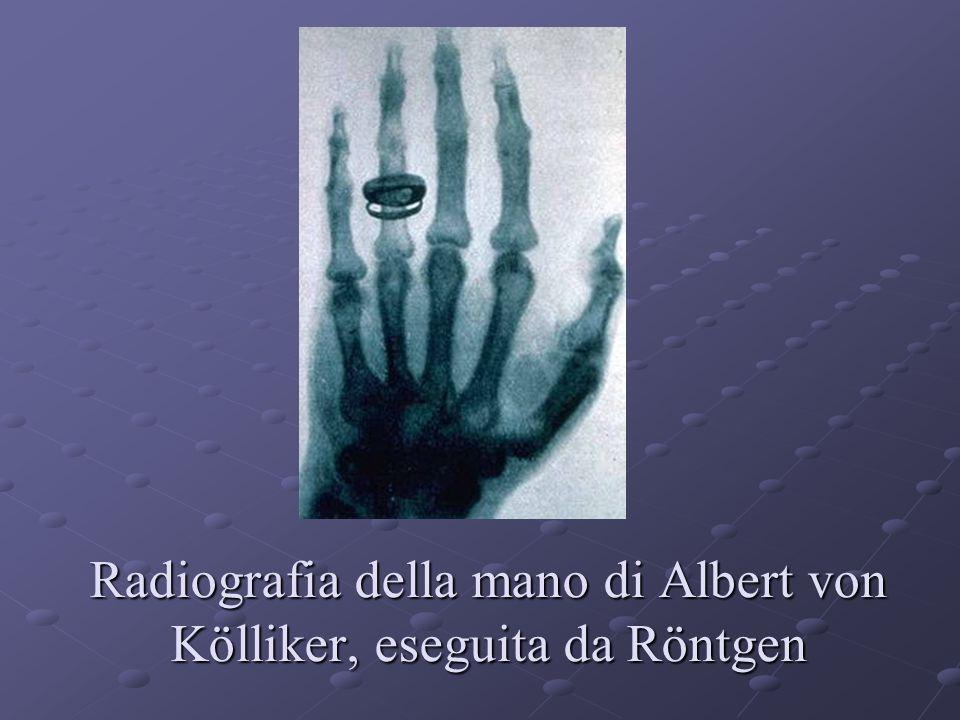 Radiografia della mano di Albert von Kölliker, eseguita da Röntgen