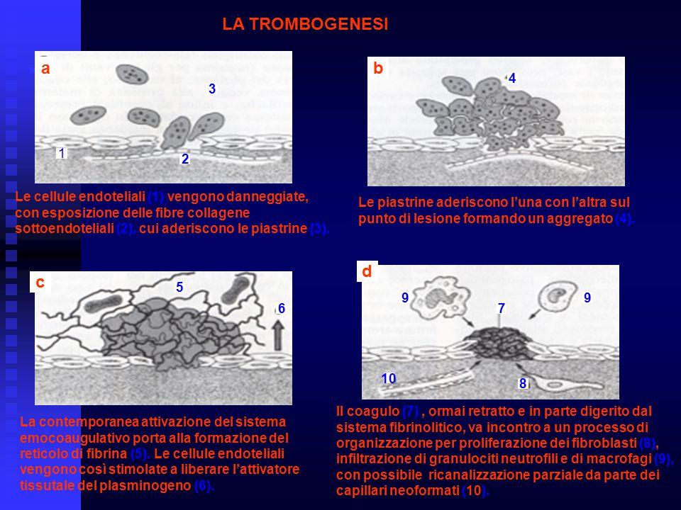 LA TROMBOGENESI ab c d 1 2 3 4 5 6 7 8 99 10 Le cellule endoteliali (1) vengono danneggiate, con esposizione delle fibre collagene sottoendoteliali (2