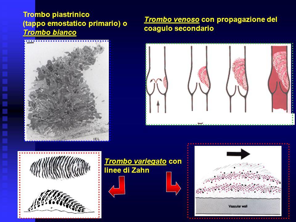 Trombo venoso Trombo venoso con propagazione del coagulo secondario Trombo variegato Trombo variegato con linee di Zahn Trombo piastrinico (tappo emos