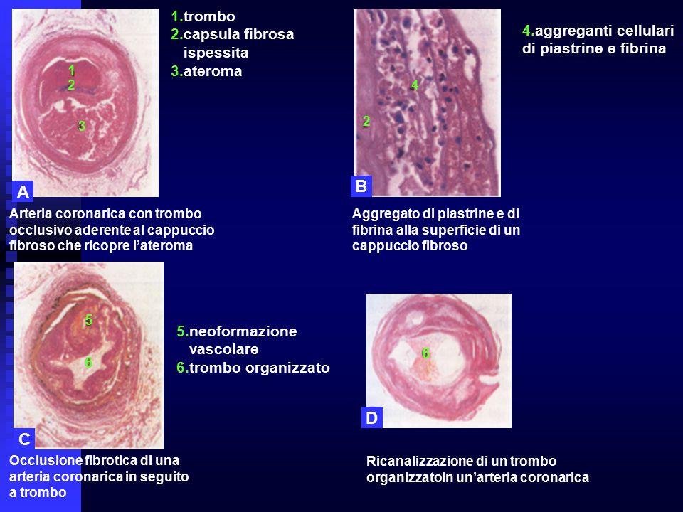 1 2 3 2 5 6 6 A B D C Arteria coronarica con trombo occlusivo aderente al cappuccio fibroso che ricopre l'ateroma Aggregato di piastrine e di fibrina