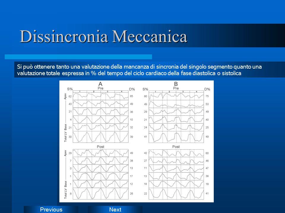 NextPrevious Dissincronia Meccanica Si può ottenere tanto una valutazione della mancanza di sincronia del singolo segmento quanto una valutazione tota