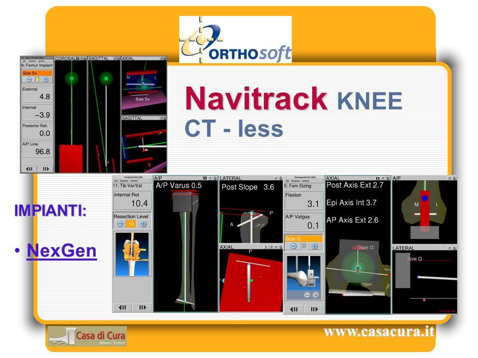 IMPIANTI: NexGen Navitrack Navitrack KNEE CT - less www.casacura.it