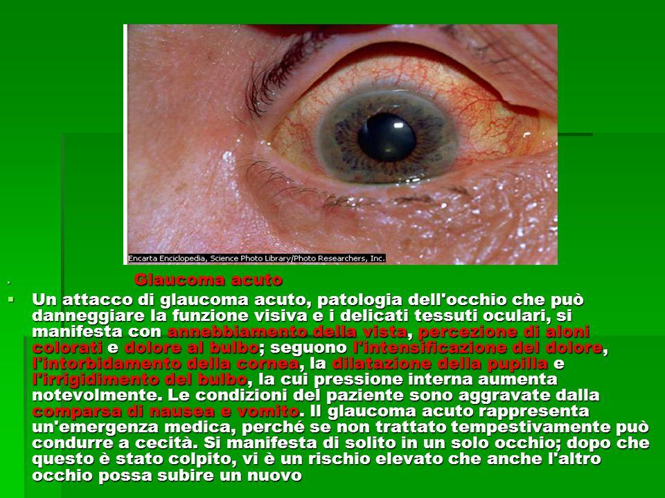  Glaucoma acuto  Un attacco di glaucoma acuto, patologia dell occhio che può danneggiare la funzione visiva e i delicati tessuti oculari, si manifesta con annebbiamento della vista, percezione di aloni colorati e dolore al bulbo; seguono l intensificazione del dolore, l intorbidamento della cornea, la dilatazione della pupilla e l irrigidimento del bulbo, la cui pressione interna aumenta notevolmente.