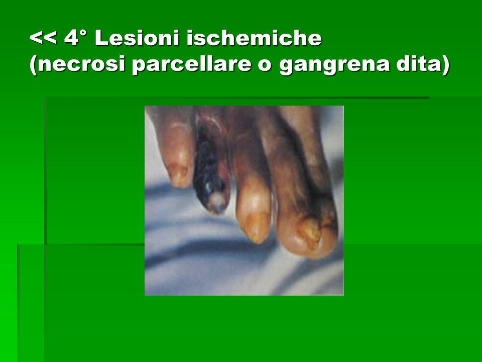 << 4° Lesioni ischemiche (necrosi parcellare o gangrena dita)