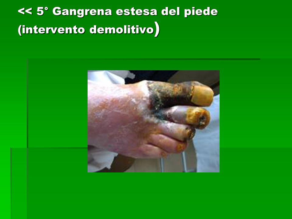 << 5° Gangrena estesa del piede (intervento demolitivo )