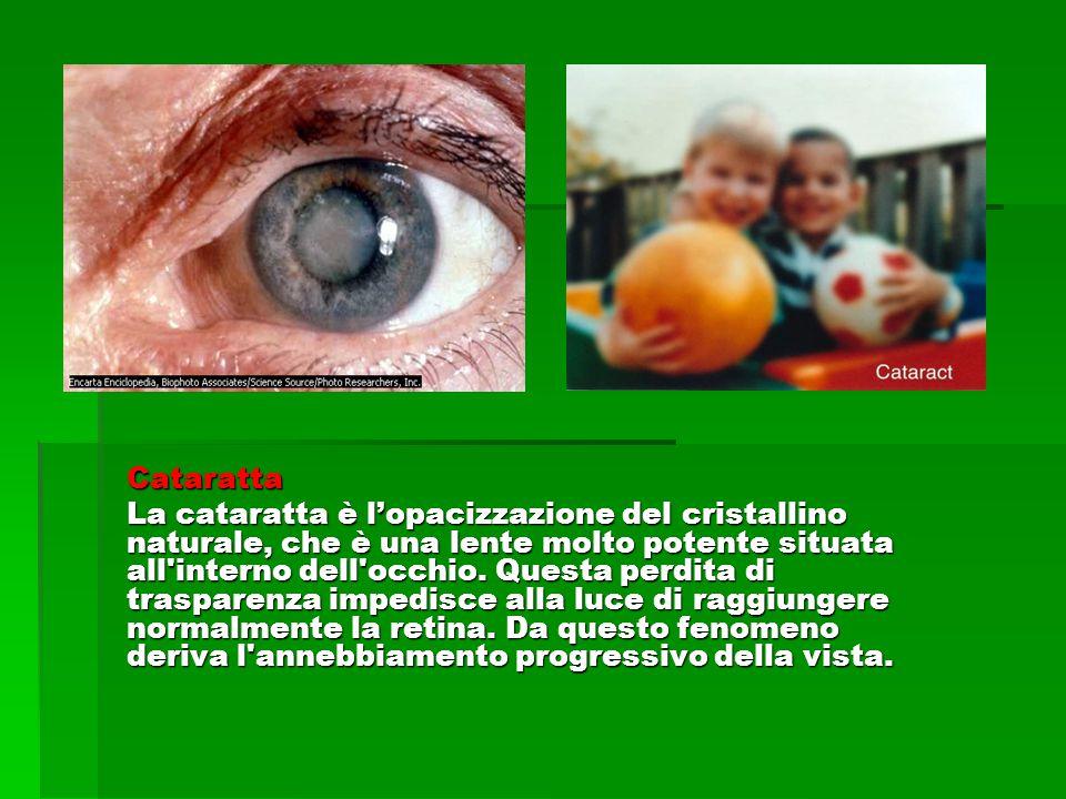 Cataratta La cataratta è l'opacizzazione del cristallino naturale, che è una lente molto potente situata all interno dell occhio.