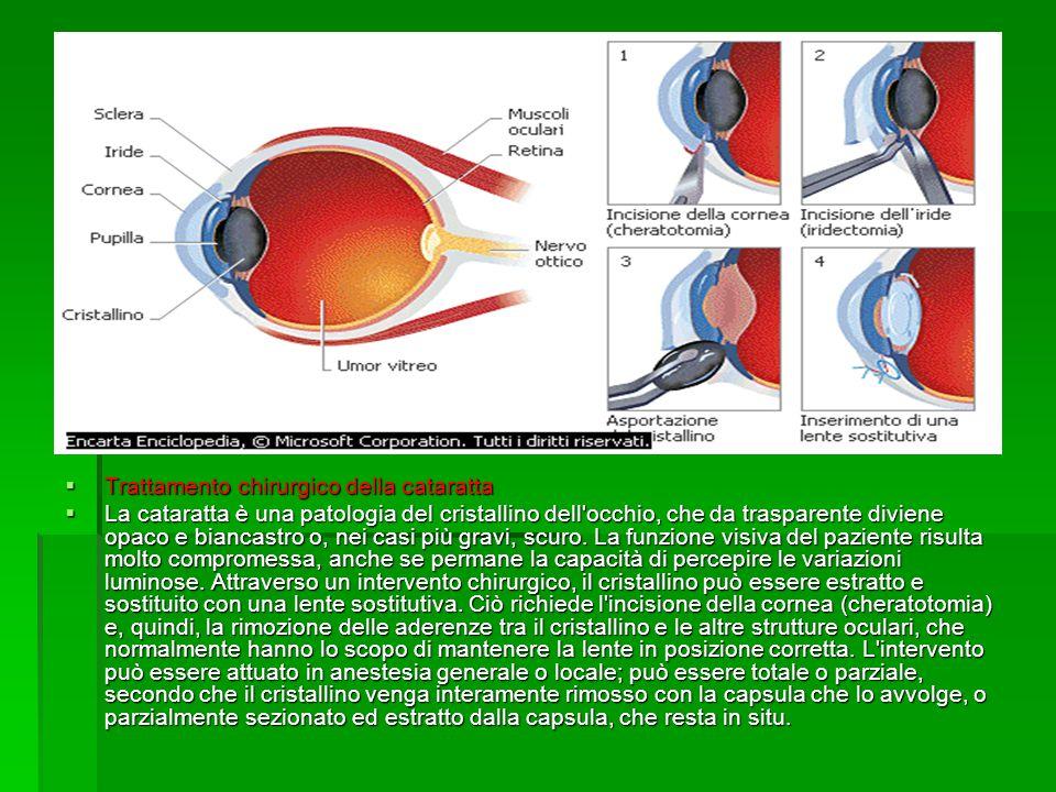  Trattamento chirurgico della cataratta  La cataratta è una patologia del cristallino dell occhio, che da trasparente diviene opaco e biancastro o, nei casi più gravi, scuro.