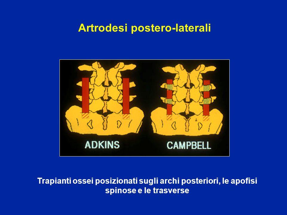 Artrodesi postero-laterali Trapianti ossei posizionati sugli archi posteriori, le apofisi spinose e le trasverse