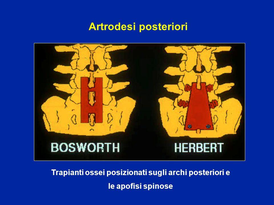 Artrodesi posteriori Trapianti ossei posizionati sugli archi posteriori e le apofisi spinose