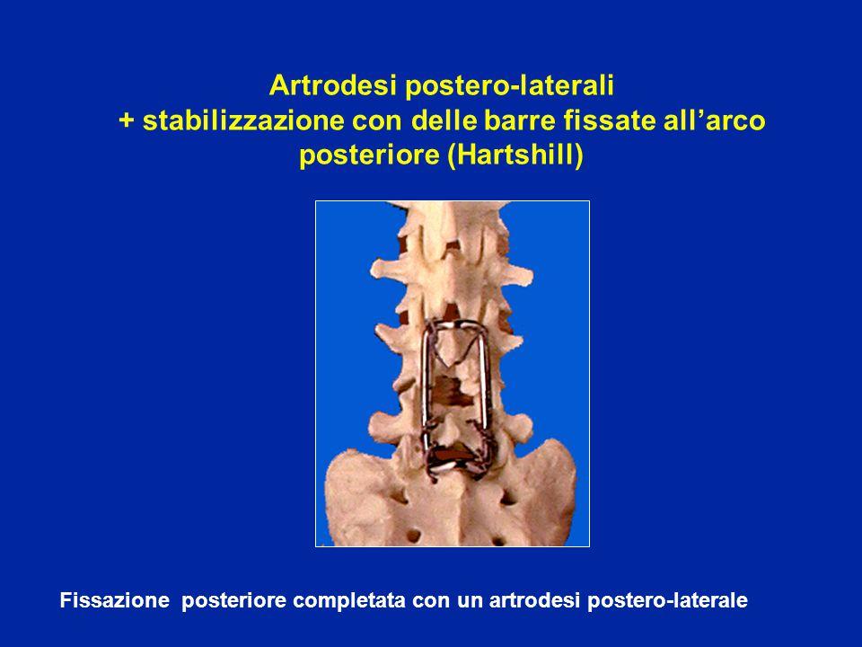 Fissazione posteriore completata con un artrodesi postero-laterale Artrodesi postero-laterali + stabilizzazione con delle barre fissate all'arco posteriore (Hartshill)