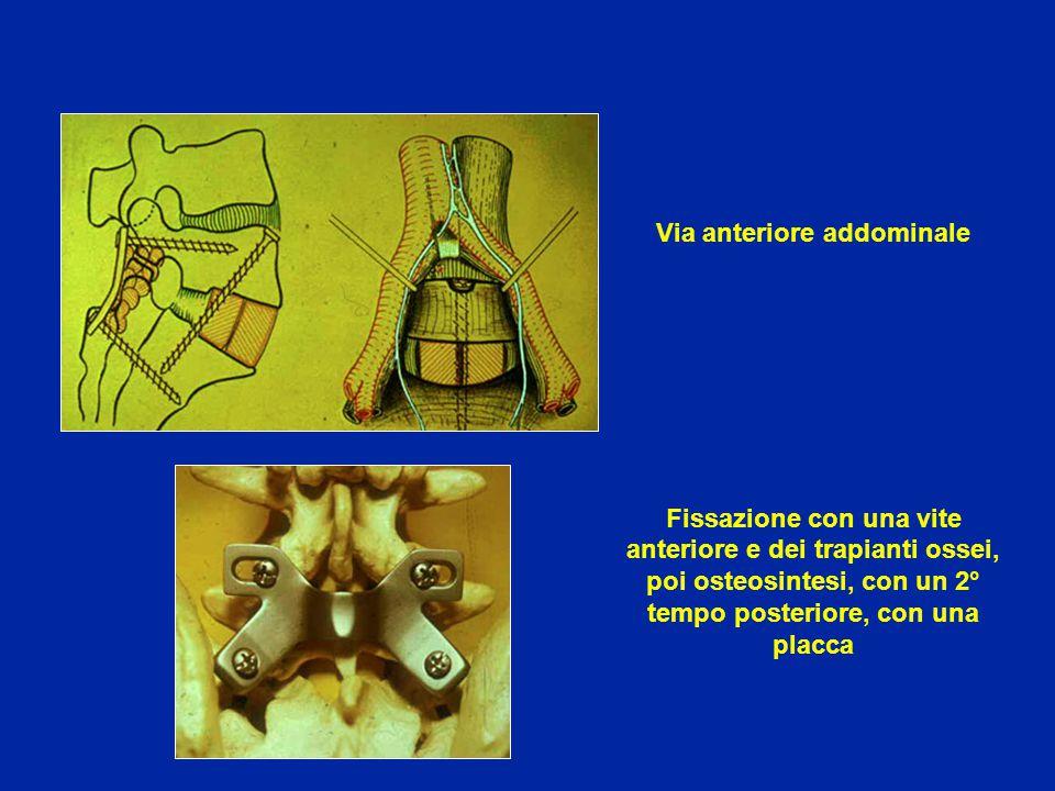 Via anteriore addominale Fissazione con una vite anteriore e dei trapianti ossei, poi osteosintesi, con un 2° tempo posteriore, con una placca