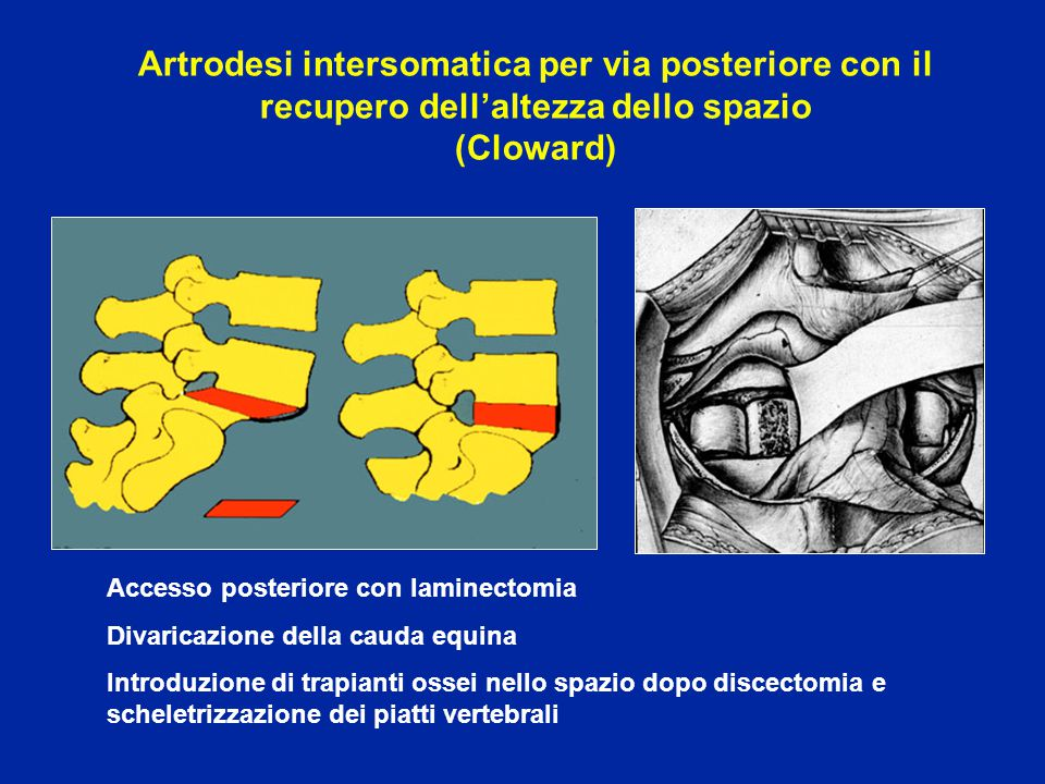 Artrodesi intersomatica per via posteriore con il recupero dell'altezza dello spazio (Cloward) Accesso posteriore con laminectomia Divaricazione della cauda equina Introduzione di trapianti ossei nello spazio dopo discectomia e scheletrizzazione dei piatti vertebrali