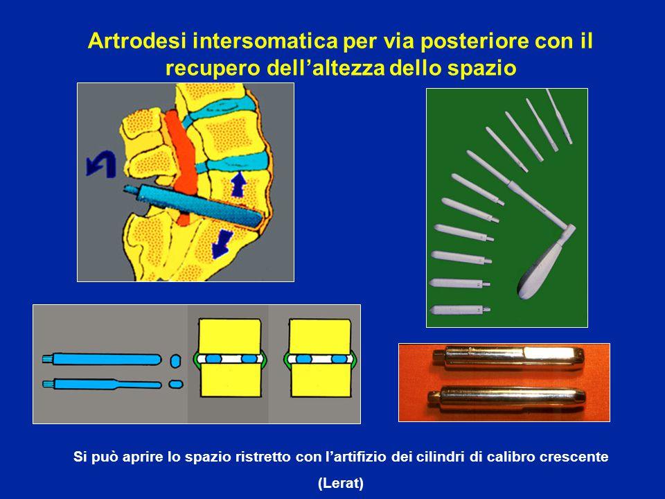 Si può aprire lo spazio ristretto con l'artifizio dei cilindri di calibro crescente (Lerat) Artrodesi intersomatica per via posteriore con il recupero