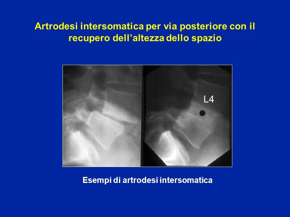 Esempi di artrodesi intersomatica L4 Artrodesi intersomatica per via posteriore con il recupero dell'altezza dello spazio