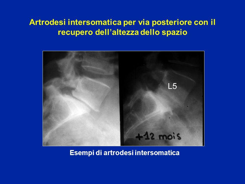 Esempi di artrodesi intersomatica L5 Artrodesi intersomatica per via posteriore con il recupero dell'altezza dello spazio