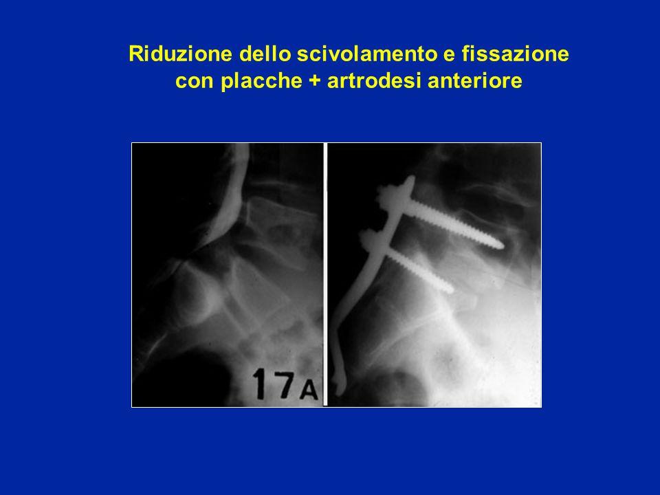Riduzione dello scivolamento e fissazione con placche + artrodesi anteriore