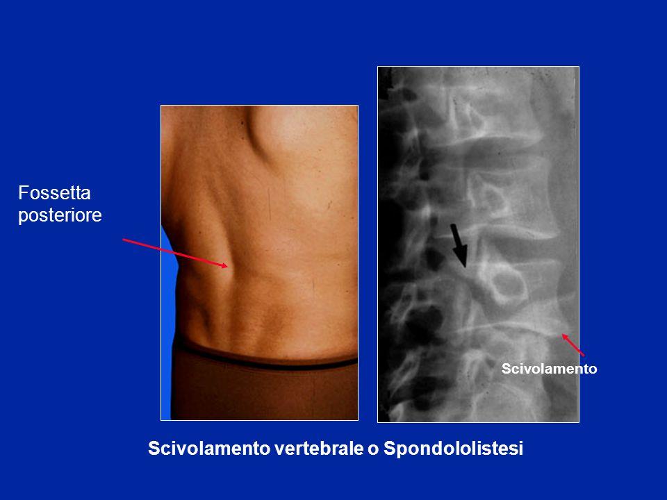 Scivolamento vertebrale o Spondololistesi Fossetta posteriore Scivolamento