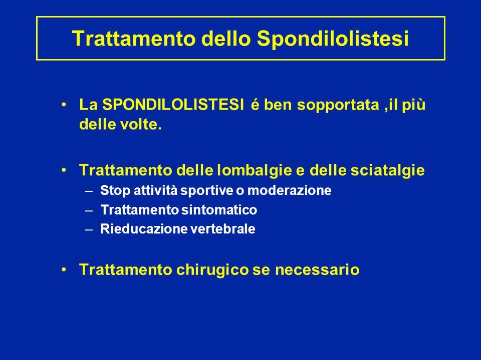 Trattamento dello Spondilolistesi La SPONDILOLISTESI é ben sopportata,il più delle volte.