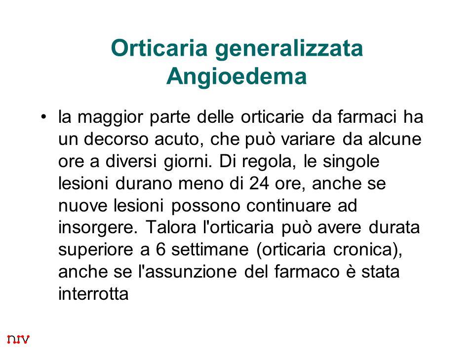 19 Orticaria generalizzata Angioedema la maggior parte delle orticarie da farmaci ha un decorso acuto, che può variare da alcune ore a diversi giorni.