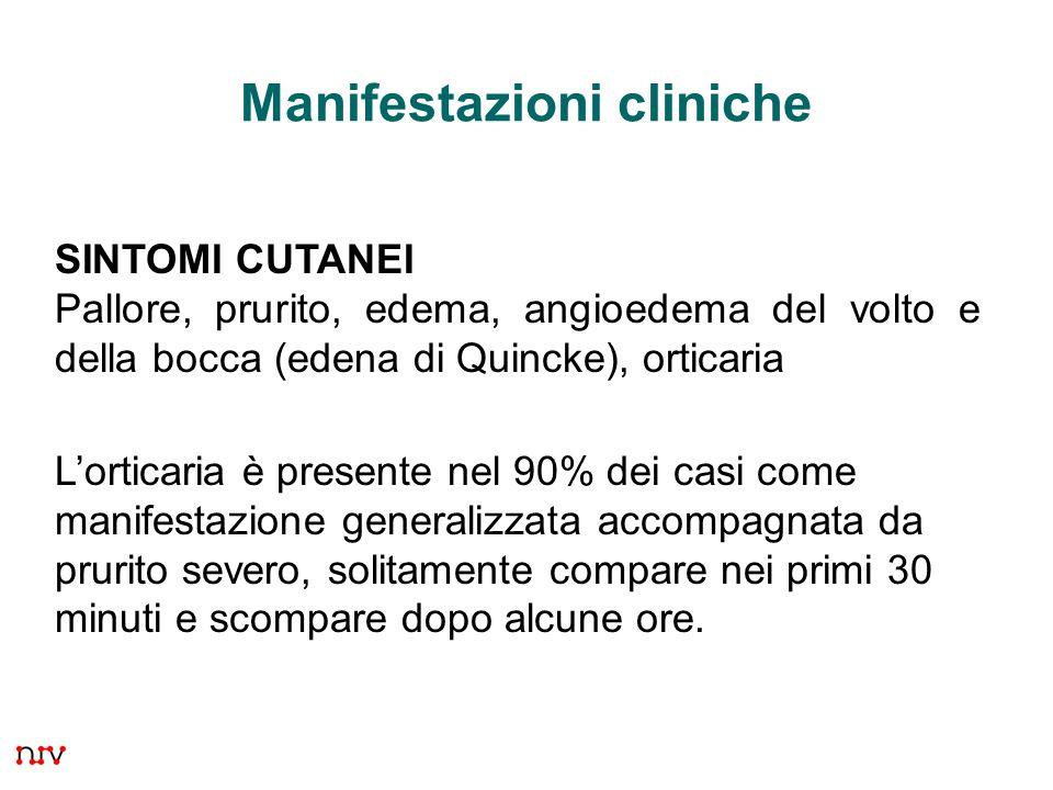 31 Manifestazioni cliniche SINTOMI CUTANEI Pallore, prurito, edema, angioedema del volto e della bocca (edena di Quincke), orticaria L'orticaria è pre