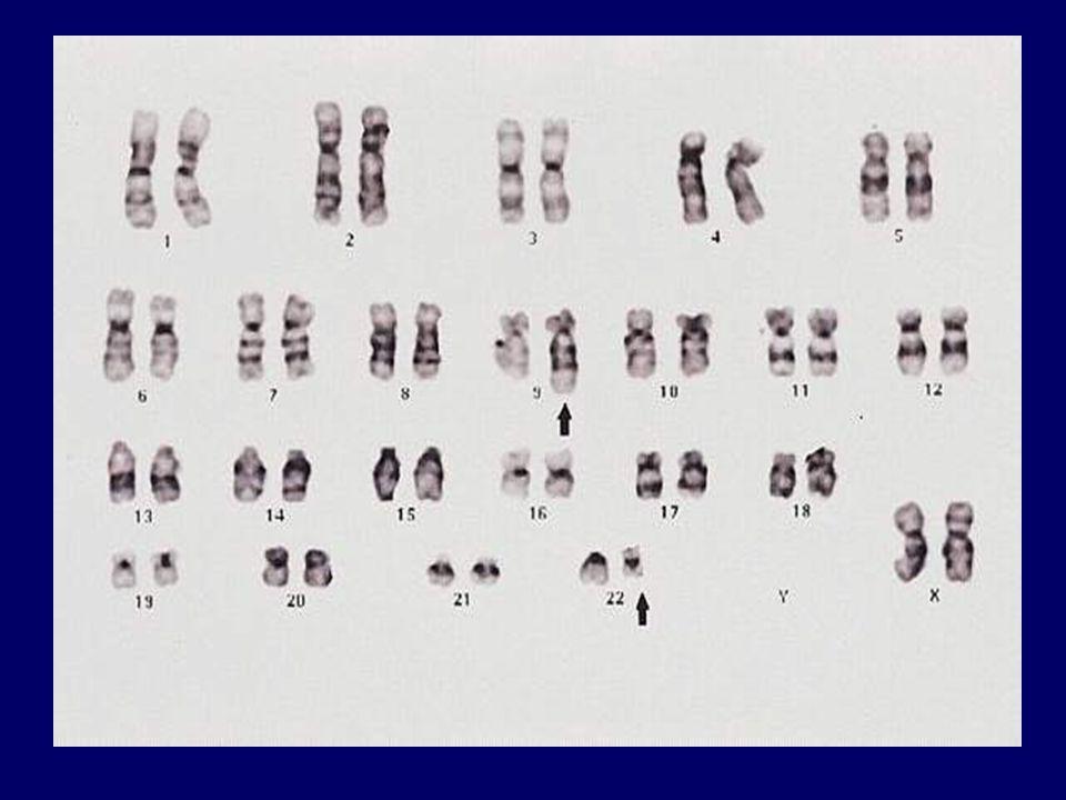 TERAPIA LMC IN FASE BLASTICA -Terapia come per leucemie acute, ma scarsi risultati: - se blasti di tipo linfoide (30% dei casi), 70% di risposte complete a chemioterapia (2 a fase cronica) ma durata di pochi mesi; - se trasformazione in leucemia acuta mieloide 30% risposte complete e di breve durata con chemioterapia intensiva o con STI571; - qualche possibilità di lunga sopravvivenza solo se trapianto allogenico in 2 a fase cronica.