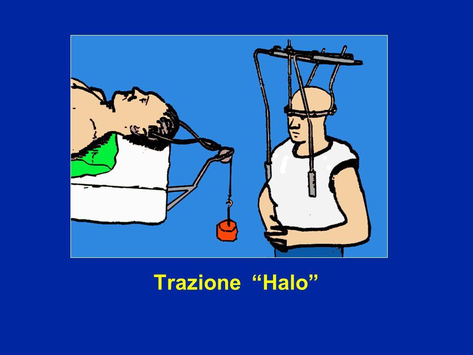 """Trazione """"Halo"""""""