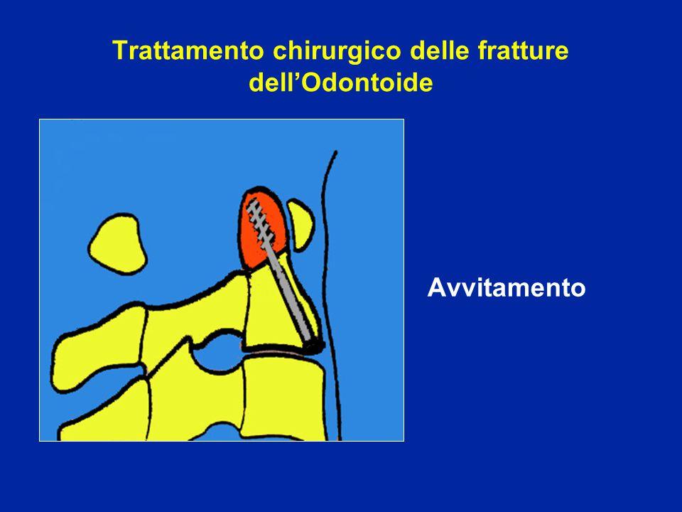Trattamento chirurgico delle fratture dell'Odontoide Avvitamento
