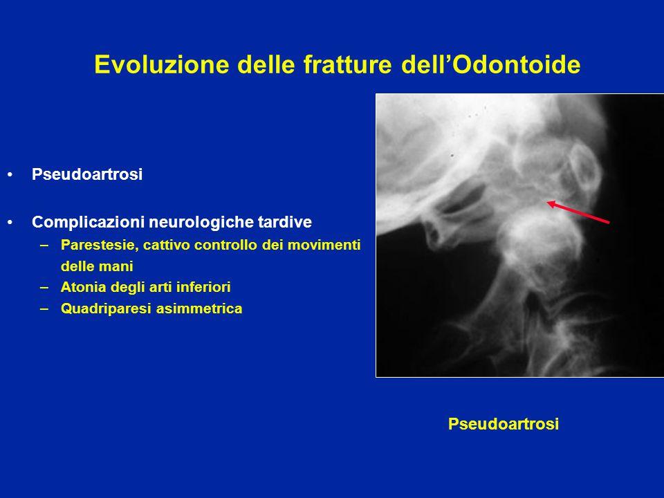 Evoluzione delle fratture dell'Odontoide Pseudoartrosi Complicazioni neurologiche tardive –Parestesie, cattivo controllo dei movimenti delle mani –Ato