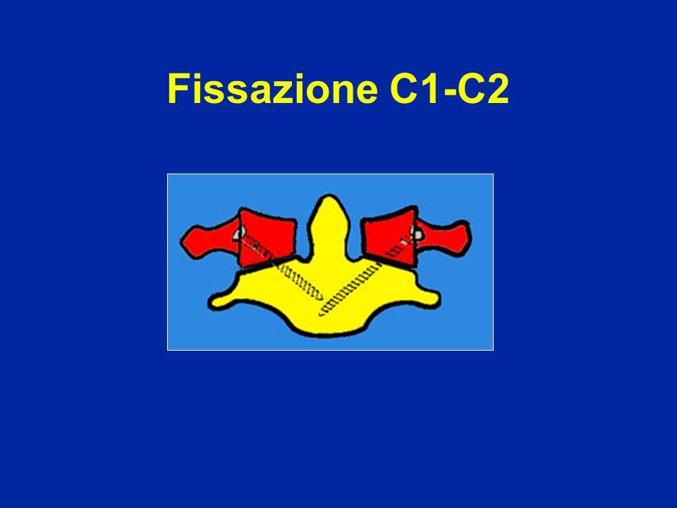 Fissazione C1-C2