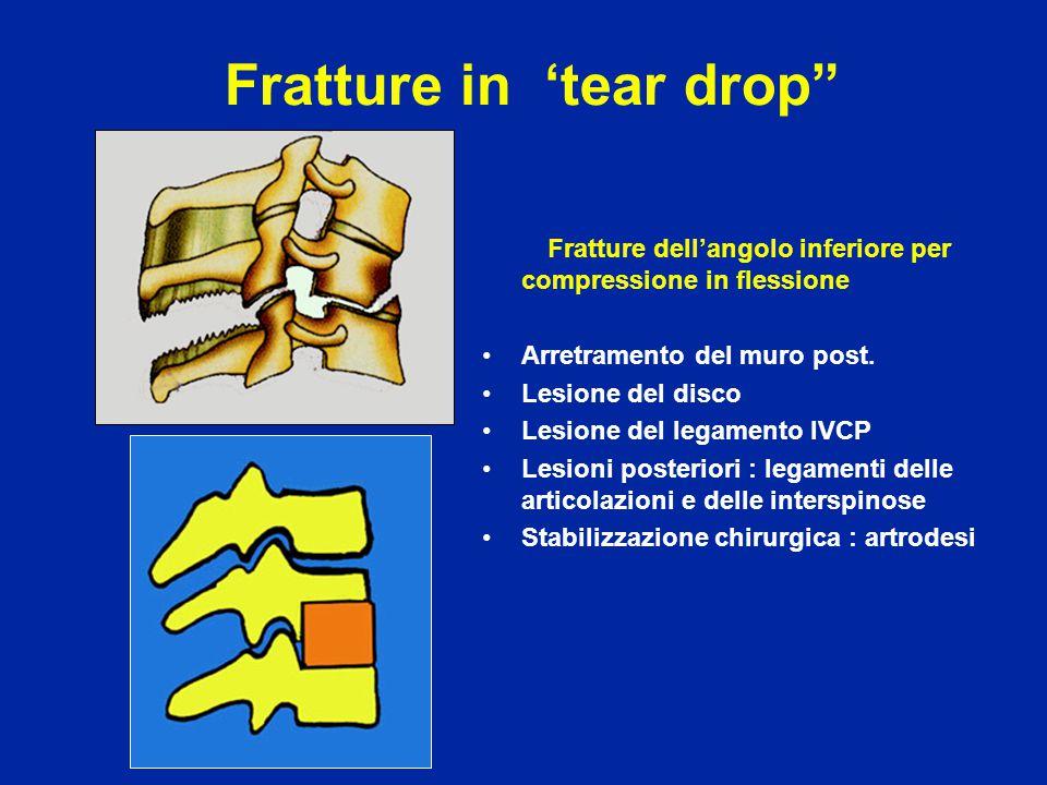 """Fratture in 'tear drop"""" Fratture dell'angolo inferiore per compressione in flessione Arretramento del muro post. Lesione del disco Lesione del legamen"""
