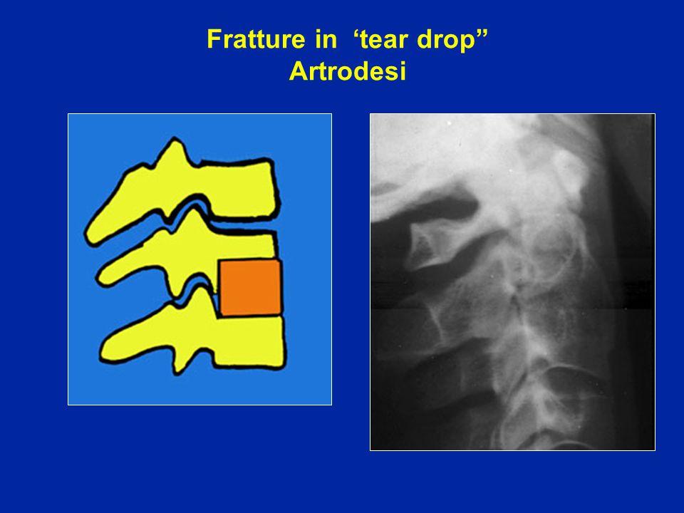 """Fratture in 'tear drop"""" Artrodesi"""