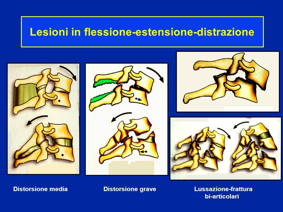 Lesioni in flessione-estensione-distrazione Distorsione media Distorsione grave Lussazione-frattura bi-articolari