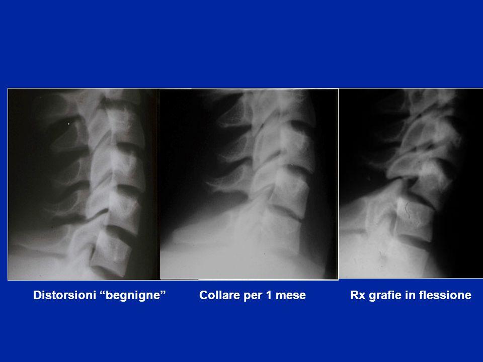 """Distorsioni """"begnigne"""" Collare per 1 mese Rx grafie in flessione"""