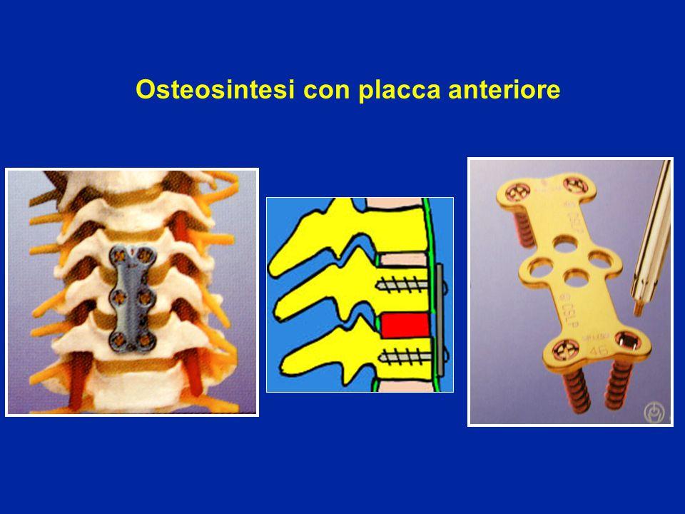 Osteosintesi con placca anteriore