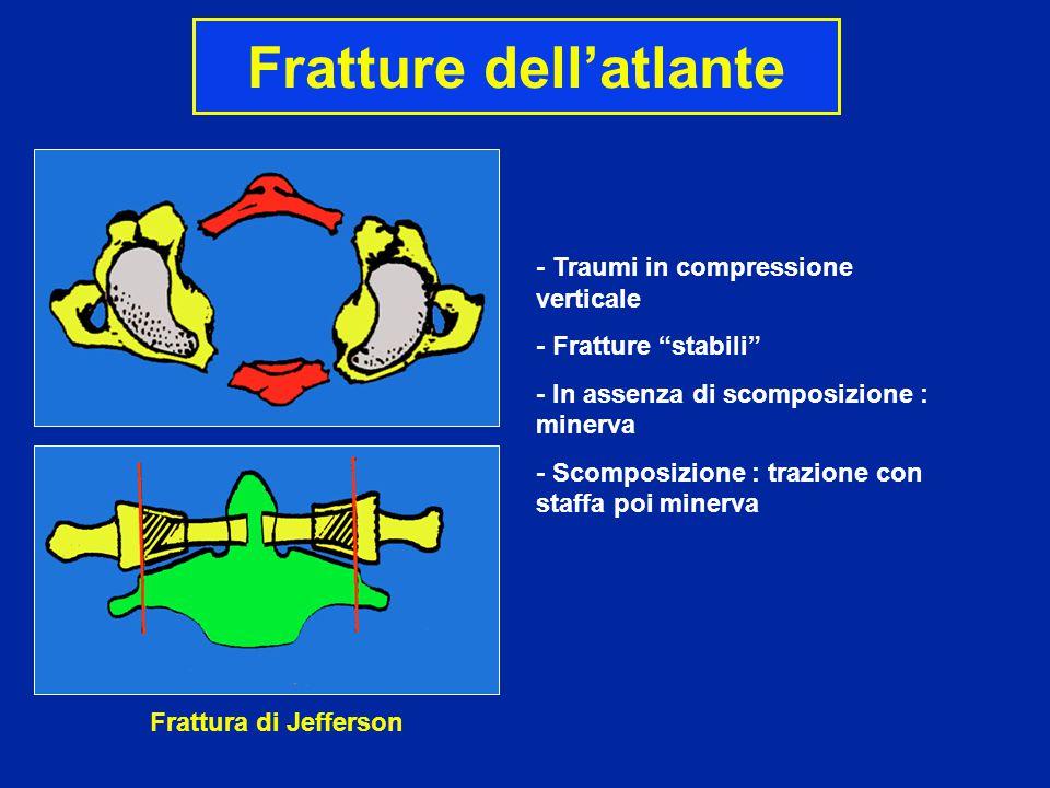 """Fratture dell'atlante Frattura di Jefferson - Traumi in compressione verticale - Fratture """"stabili"""" - In assenza di scomposizione : minerva - Scomposi"""