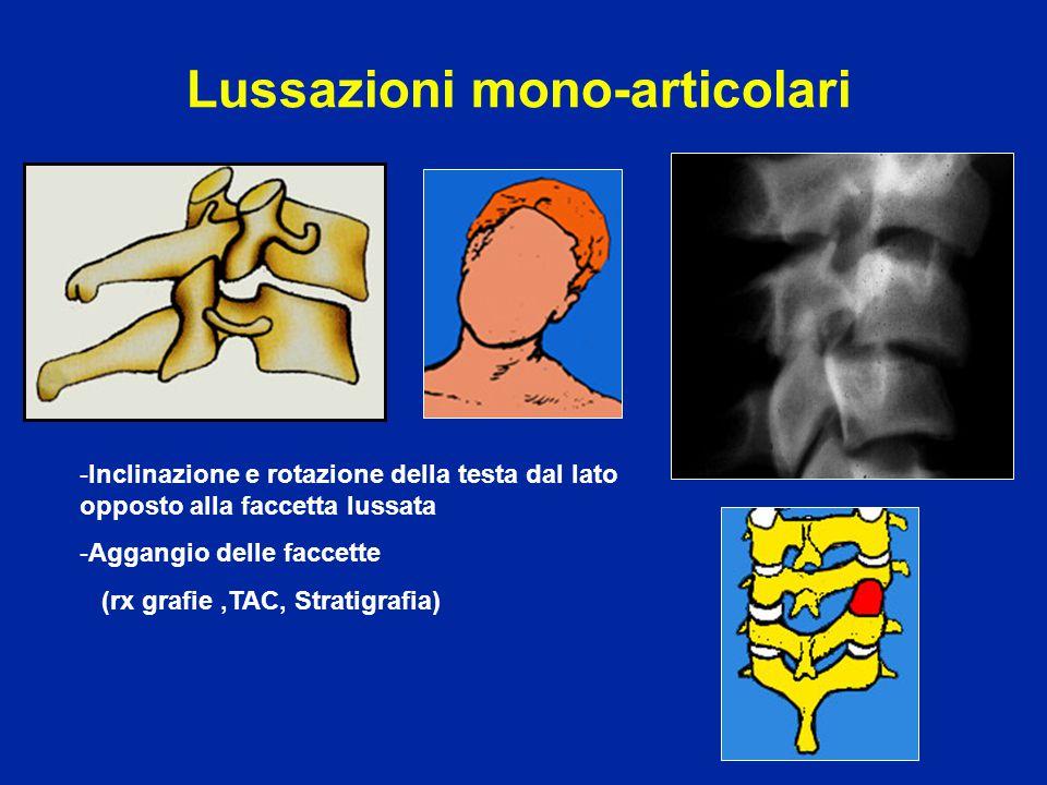 Lussazioni mono-articolari -Inclinazione e rotazione della testa dal lato opposto alla faccetta lussata -Aggangio delle faccette (rx grafie,TAC, Strat