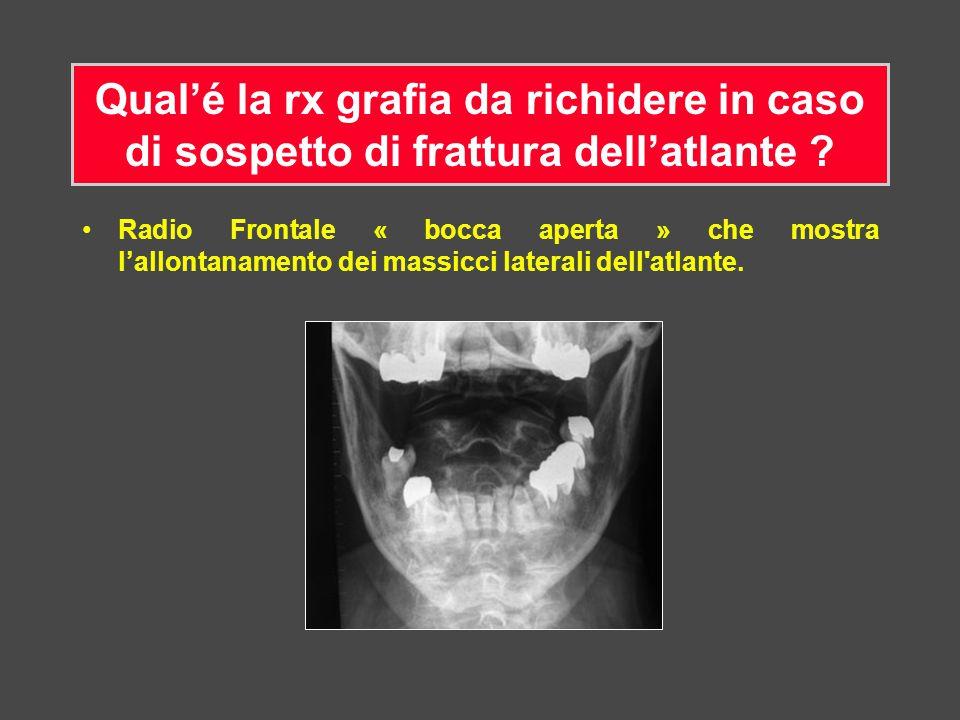 Radio Frontale « bocca aperta » che mostra l'allontanamento dei massicci laterali dell'atlante.