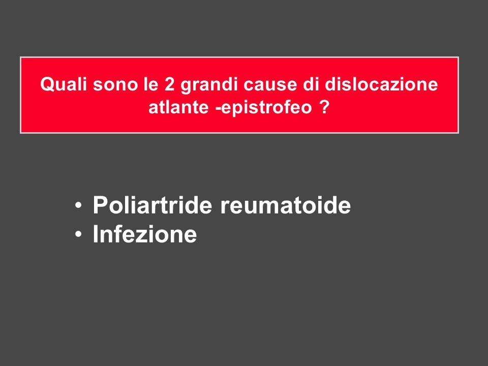 Poliartride reumatoide Infezione Quali sono le 2 grandi cause di dislocazione atlante -epistrofeo ?