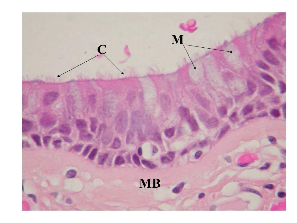 Alternanza epitelio displastico/epitelio normale