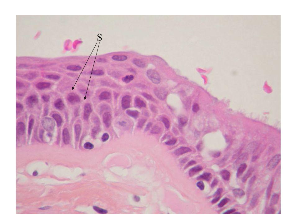 Lesioni precancerose = condizioni associate ad un aumentato rischio di trasformazione neoplastica Metaplasia squamosa dell'epitelio respiratorio Ulcera gastrica Gastrite cronica atrofica Cirrosi epatica Colite ulcerativa Iperplasia endometriale atipica