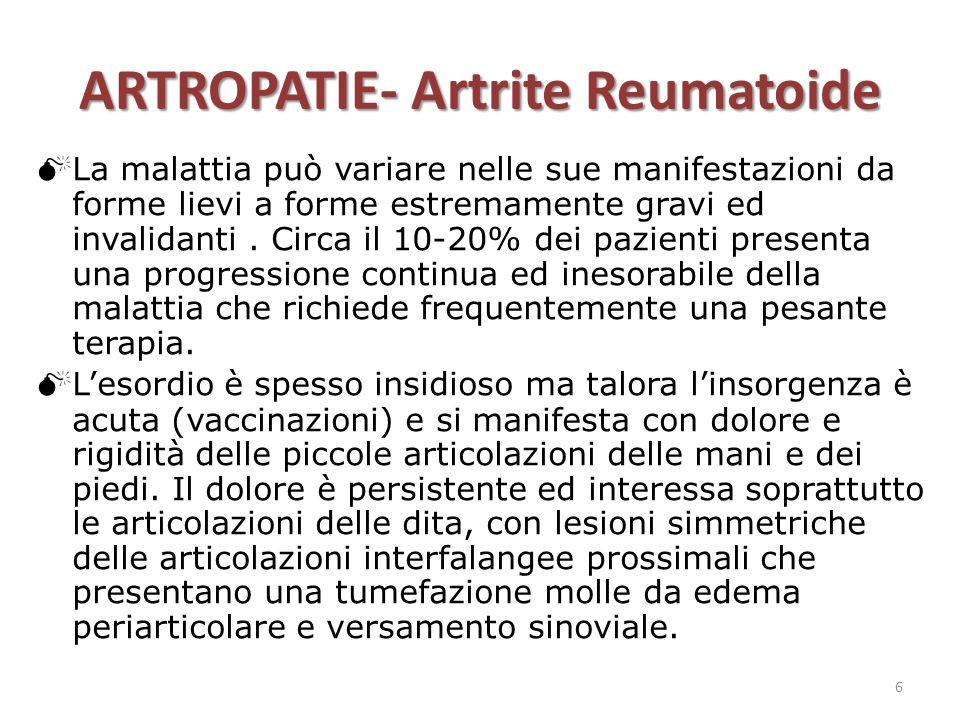 ARTROPATIE- Artrite Reumatoide  La malattia può variare nelle sue manifestazioni da forme lievi a forme estremamente gravi ed invalidanti. Circa il 1