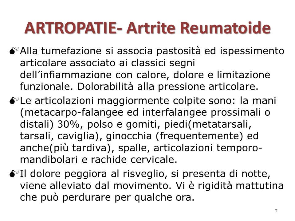 ARTROPATIE- Artrite Reumatoide  Alla tumefazione si associa pastosità ed ispessimento articolare associato ai classici segni dell'infiammazione con c