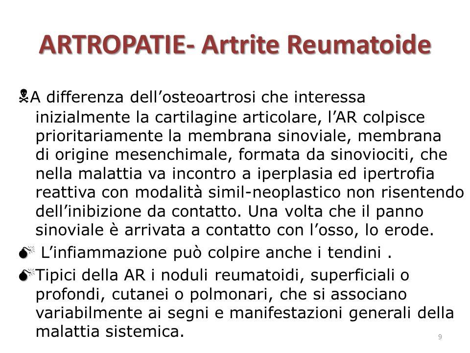 ARTROPATIE- Artrite Reumatoide  A differenza dell'osteoartrosi che interessa inizialmente la cartilagine articolare, l'AR colpisce prioritariamente l