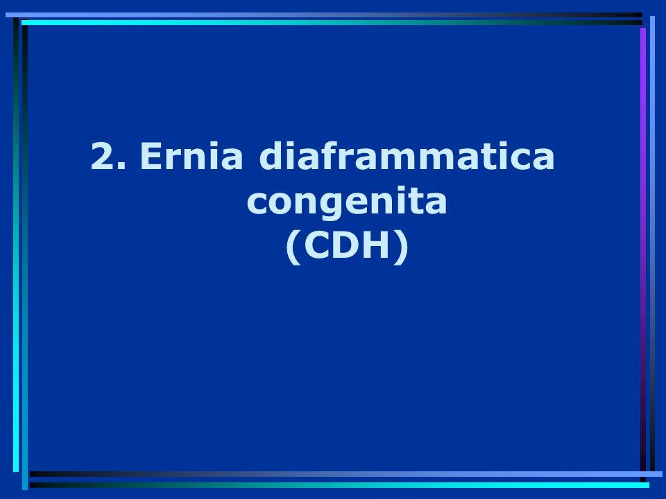 2.Ernia diaframmatica congenita (CDH)
