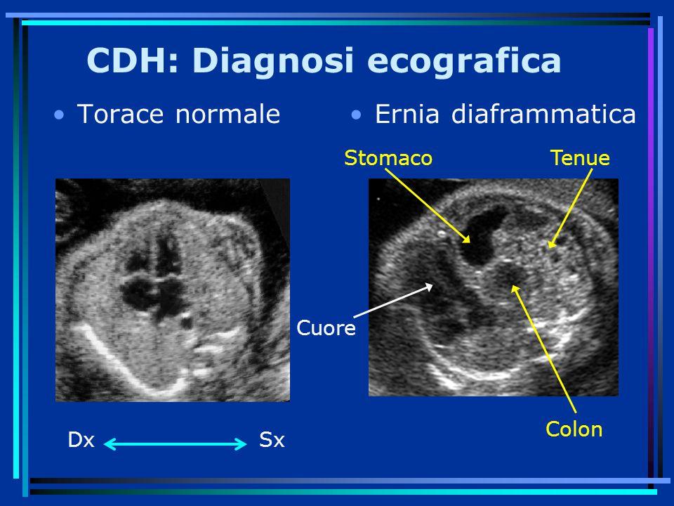 CDH: Diagnosi ecografica Torace normaleErnia diaframmatica Cuore Colon StomacoTenue DxSx