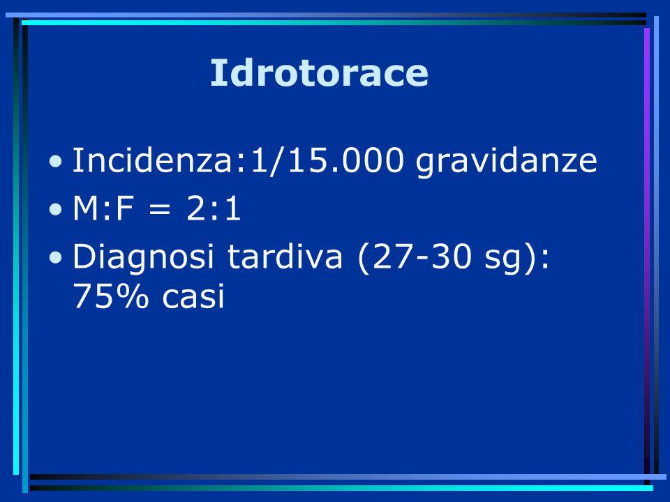 Idrotorace Incidenza:1/15.000 gravidanze M:F = 2:1 Diagnosi tardiva (27-30 sg): 75% casi