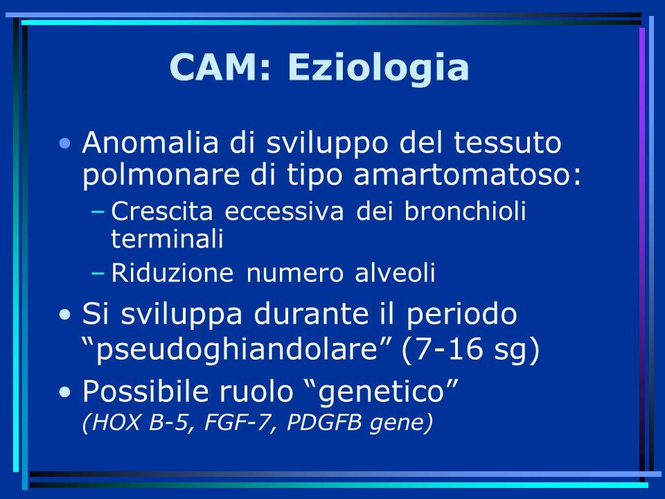 CAM: Eziologia Anomalia di sviluppo del tessuto polmonare di tipo amartomatoso: –Crescita eccessiva dei bronchioli terminali –Riduzione numero alveoli Si sviluppa durante il periodo pseudoghiandolare (7-16 sg) Possibile ruolo genetico (HOX B-5, FGF-7, PDGFB gene)