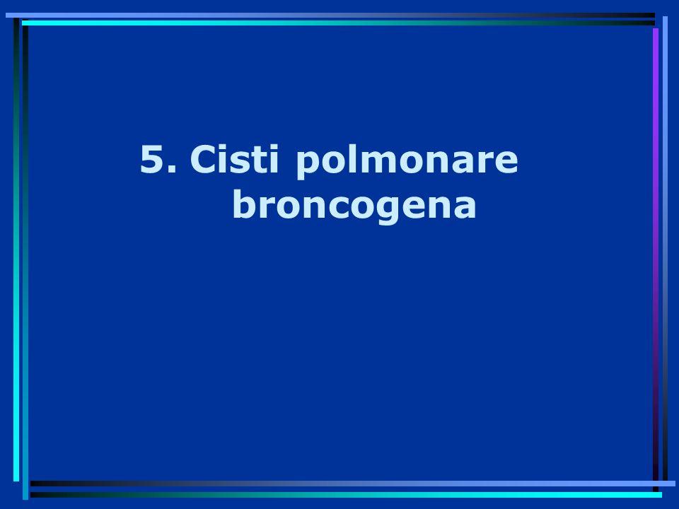 5.Cisti polmonare broncogena