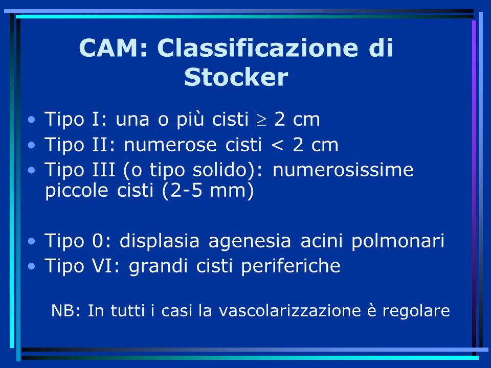 CAM: Classificazione di Stocker Tipo I: una o più cisti  2 cm Tipo II: numerose cisti < 2 cm Tipo III (o tipo solido): numerosissime piccole cisti (2-5 mm) Tipo 0: displasia agenesia acini polmonari Tipo VI: grandi cisti periferiche NB: In tutti i casi la vascolarizzazione è regolare